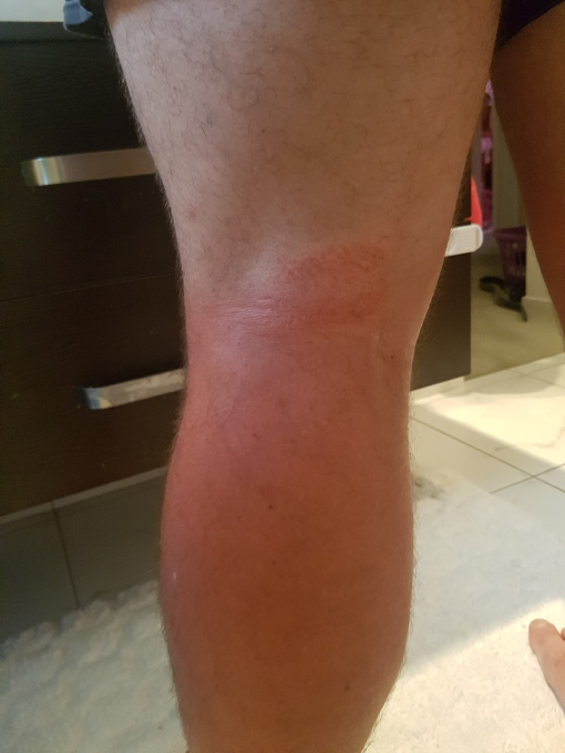 Behind knee chafing plus sun burn